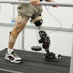 Toby Elery's powered prosthetic leg